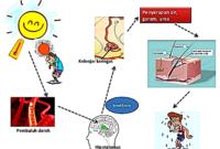 4 Faktor yang Mempengaruhi Pengeluaran Keringat Lengkap